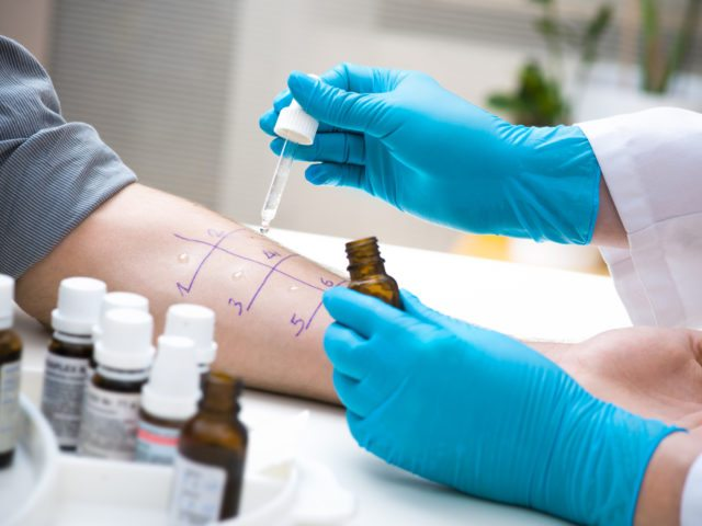 The Benefits of Allergy Testing